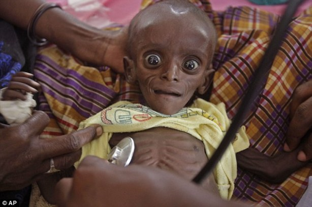 Desperate: Seven-month-old Mihag Gedi Farah weighs just 7lbs and was hours from death after arriving at a field hospital in Dadaab, Kenya. His mother walked with him for weeks from Somalia after their livestock died. Doctos yesterday gave him a 50-50 chance of survival. Photo: AP