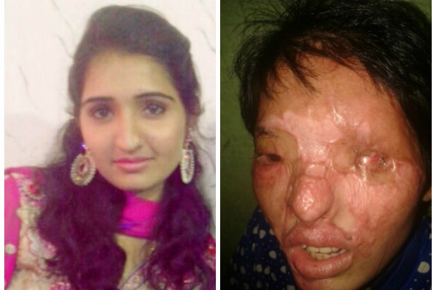 Reshma before and after