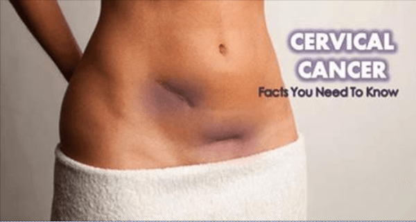 cervical cancer postop